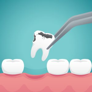 Tooth Extraction Dry Socket