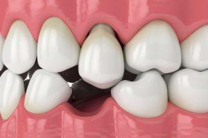 Missing Teeth Disruption